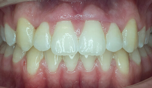 Before and after orthodontics images