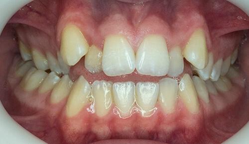 Orthodontics Case 1 Before