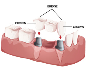 Dunboyne Dental Crown and bridges