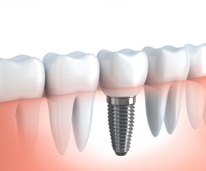 Dunboyne Dental Implants
