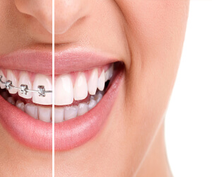 Dunboyne Dental Orthodontics